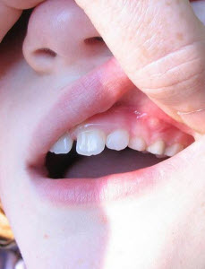 How To Get Rid Of Canker Sores In Your Child S Mouth Las
